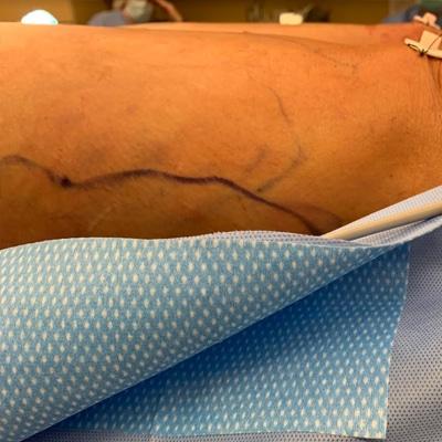 Renuvion, Elite Plastic Surgery
