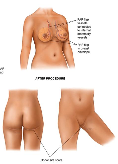 Body, Breast and butt Procedure *Not an actual Elite Plastic Surgery patient| Elite Plastic Surgery | cellulite reduction | Phoenix, AZ