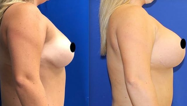 befor-and-after-breast-03